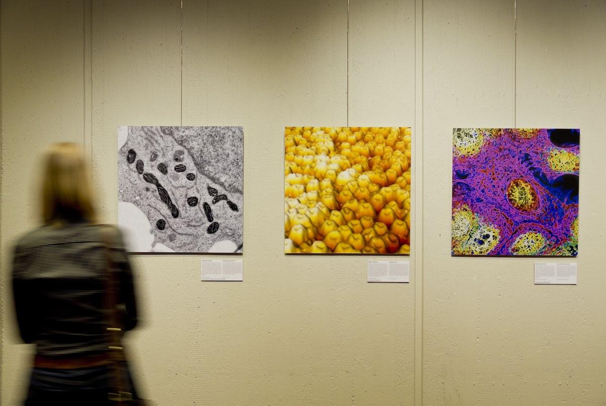 Von mikro bis makro: 27 farbenprächtige Bilder geben Ausstellungsbesuchern Einblicke in das Körperinnere. (Foto: Lichtenscheidt)